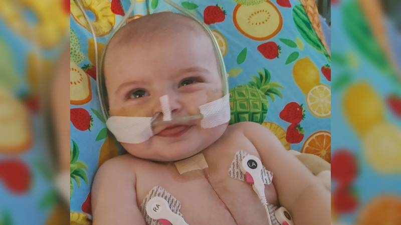 Baby Oaklee received a new heart