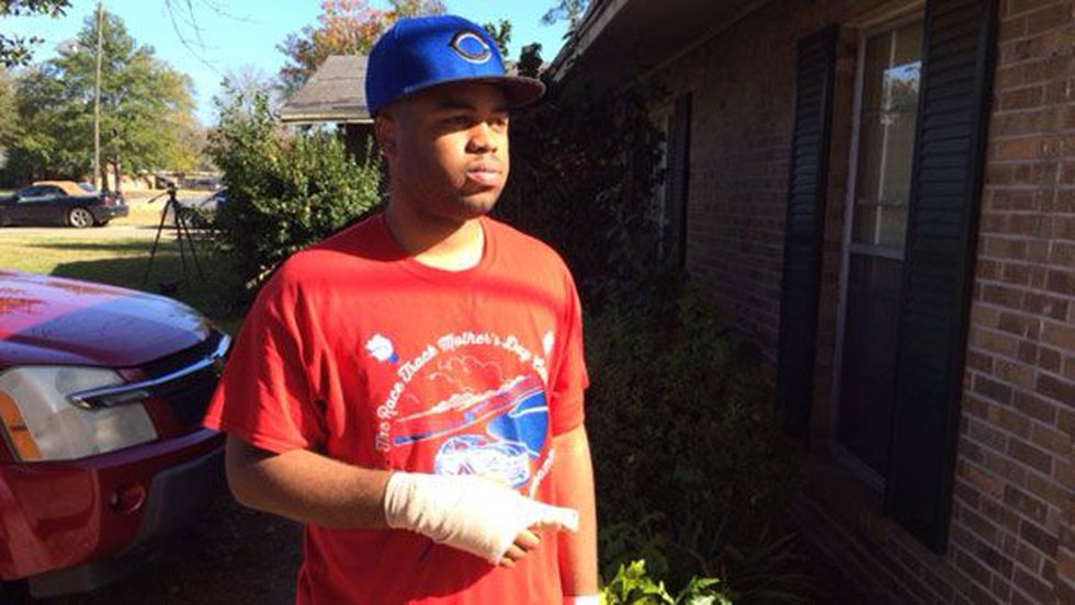 LeGarian Huffman suffered a gunshot wound to his right hand. (Source: WSFA 12 News)